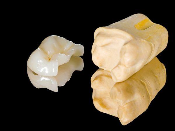 Сколько стоит керамика одного зуба